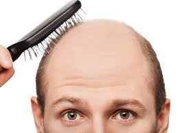How Much Hair Loss Is Normal Male